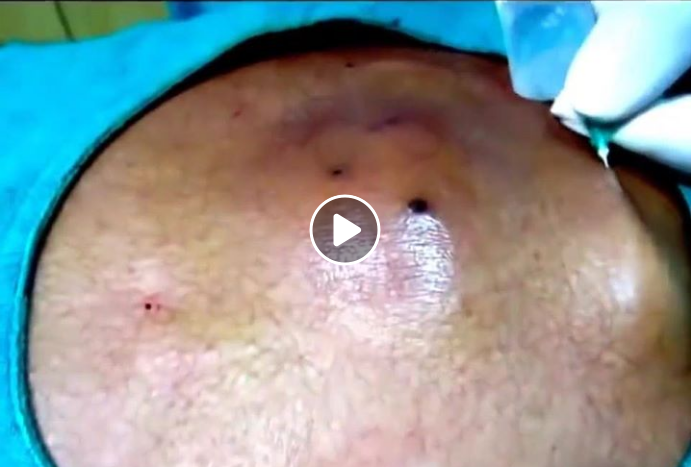 Ingrown Hair Cyst Www Pixshark Com Images Galleries