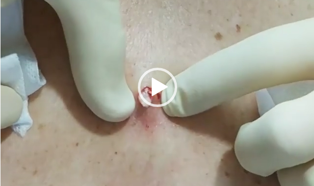 Messy Cyst Popping