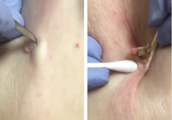 A Dilated Pore Of Winer On The Right Lateral Thigh Dr Sandra