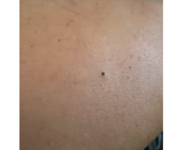 Youtube Blackheads And Large Pores 2018
