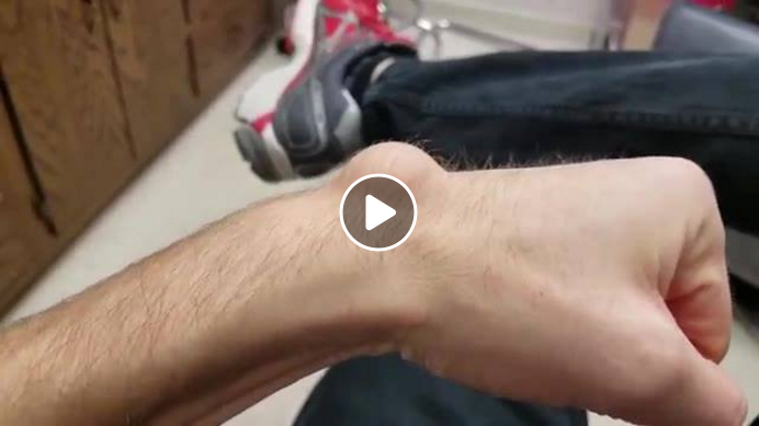 Draining a Huge Ganglion Cyst With Aspiration… | Viral On ...