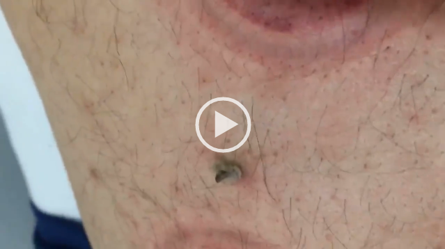 Very Large Pimple Back Viral On The Web Now