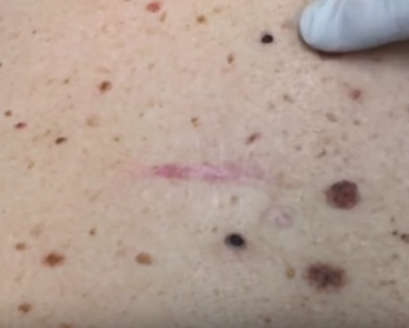 dilated pore of winer treatment | Viral On The Web Now